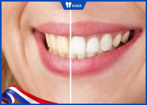 răng sứ có bị ố vàng không