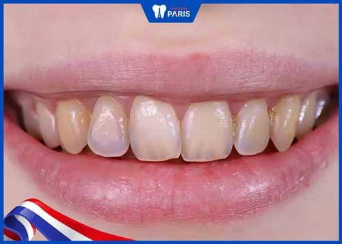 tẩy trắng răng với giấm táo có hiệu quả không