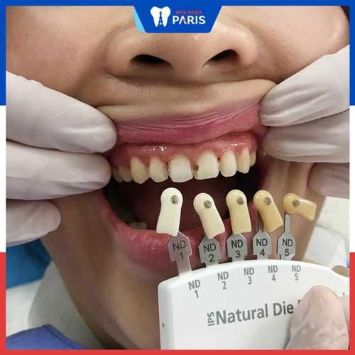 bọc răng sứ với dán sứ cái nào tốt hơn