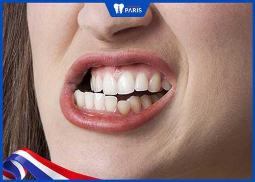 nghiến răng làm chảy máu răng sau sinh