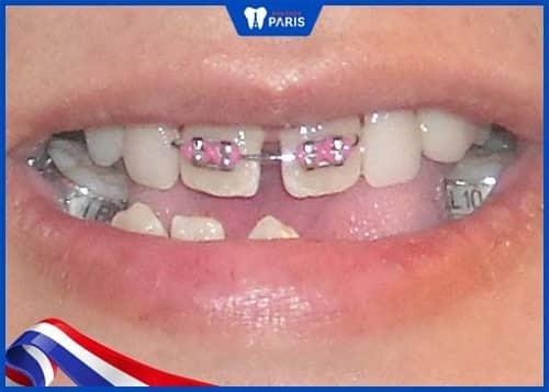 niềng 2 răng cửa