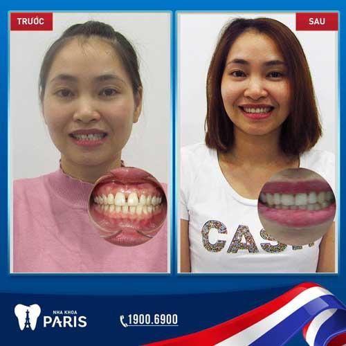 niềng răng chữa răng thưa