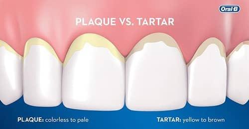 phân biệt mảng bám răng và cao răng