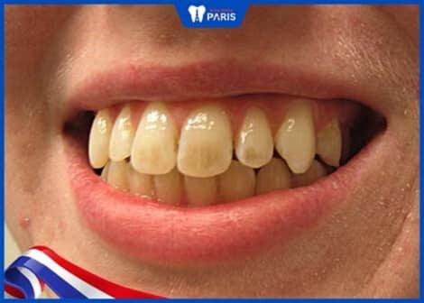 răng vàng