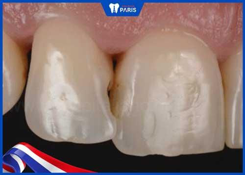 quy trình trám răng cửa