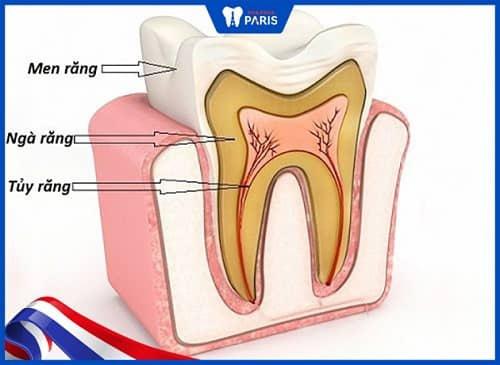 tẩy răng không trắng do cấu trúc men