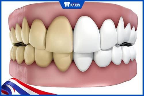 tẩy răng nhưng không trắng do tetra