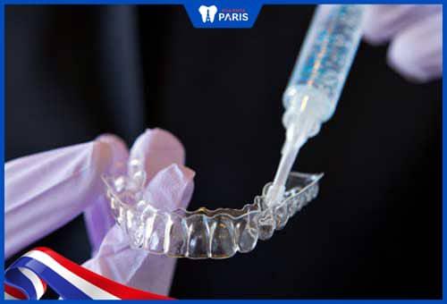 tẩy răng không đều màu do phương pháp tẩy sai