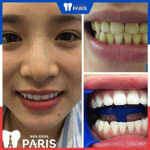 tẩy trắng răng bằng laser whitening có hại không