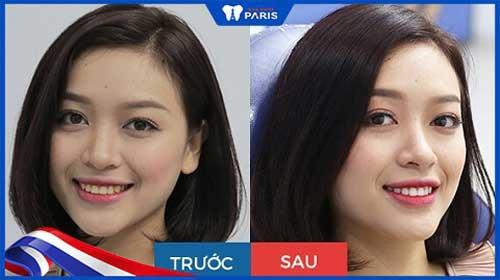 trước và sau quy trình tẩy trắng răng