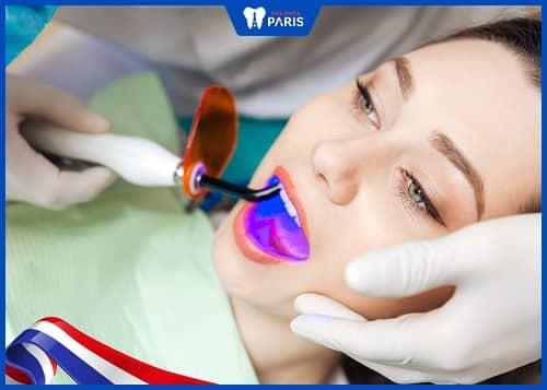 tẩy trắng răng laser