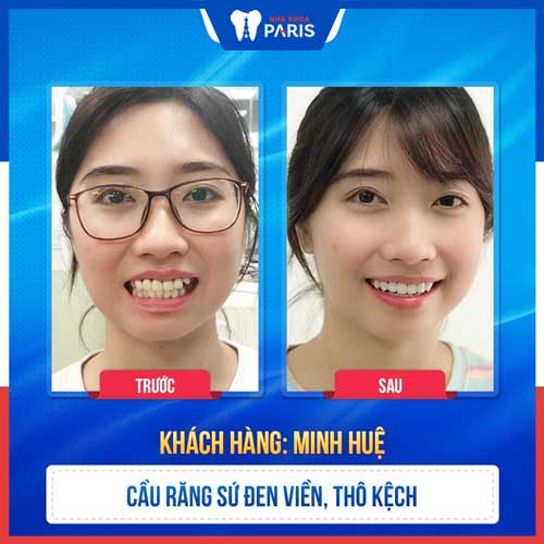 cách khắc phục răng sứ bị vàng