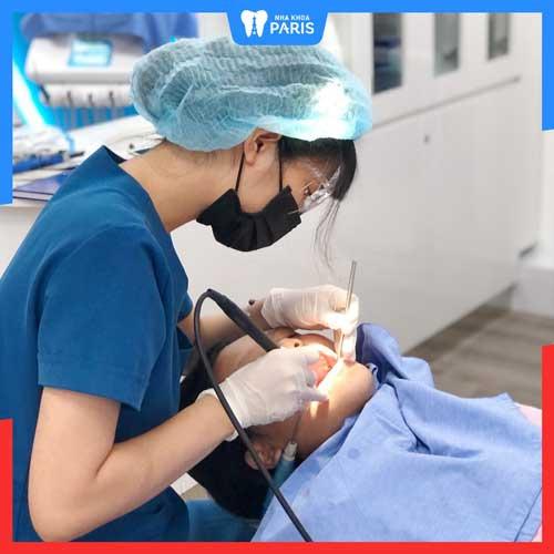 quy trình trám răng mẻ