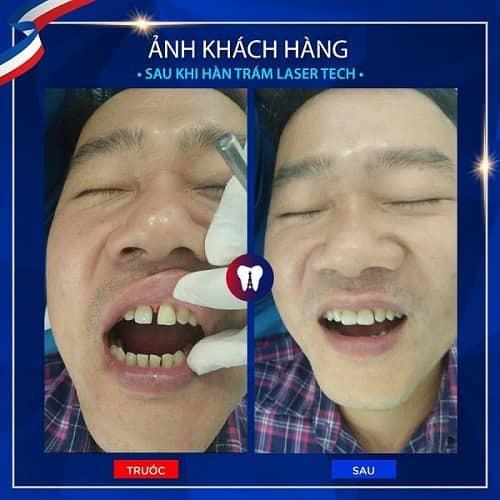 khách hàng trám răng thay vì chữa răng thưa ở nhà