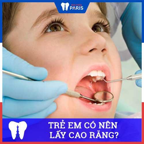 Trẻ em có nên lấy cao răng không? Khi nào nên cạo vôi răng cho trẻ?