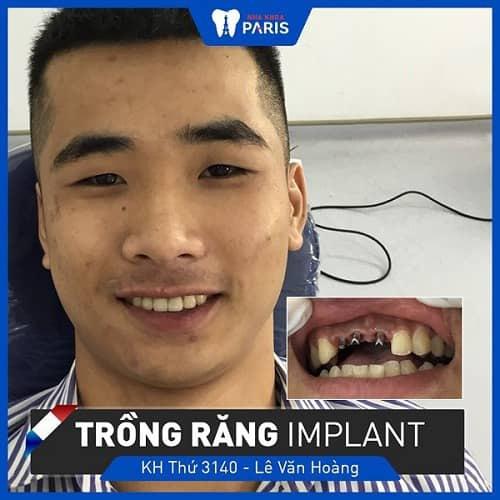 trồng implant ngăn răng thưa dần