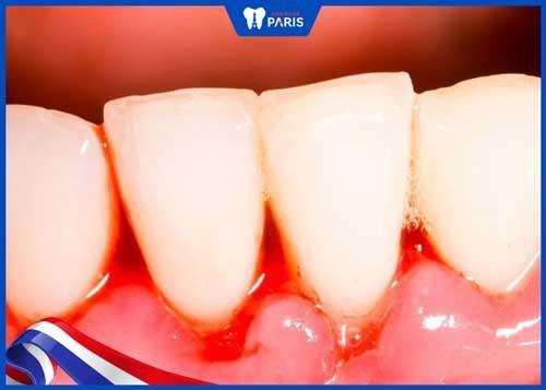 chảy máu chân răng không ngừng