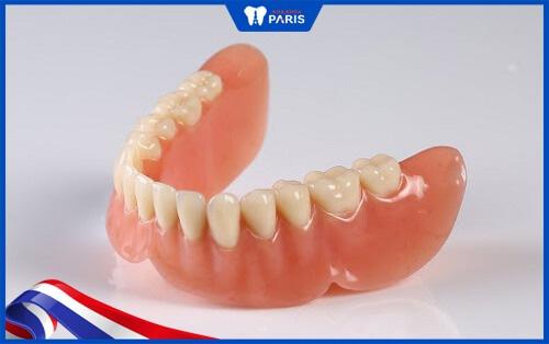 đặc điểm răng giả tháo lắp nhựa dẻo
