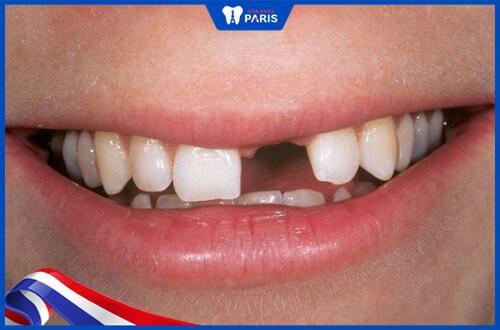 hàm giả tháo lắp nhựa dẻo cho người mất răng