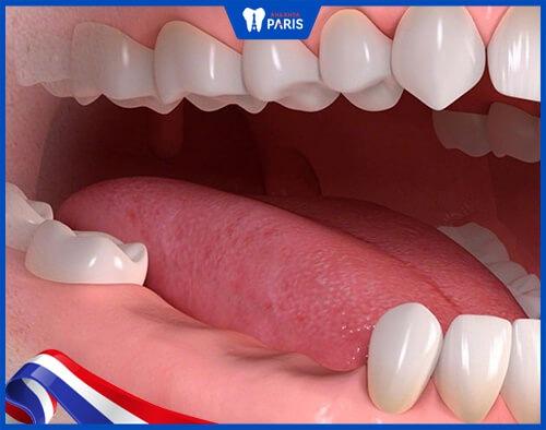 hàm tháo lắp nhựa cứng cho trường hợp mất nhiều răng