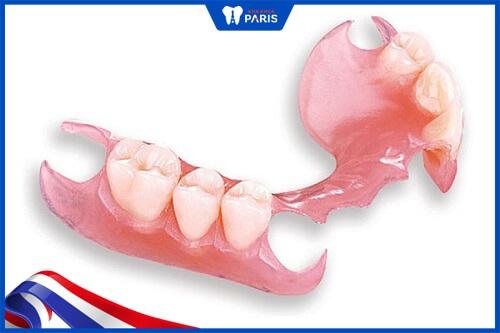 ưu nhược điểm hàm răng giả tháo lắp nhựa dẻo