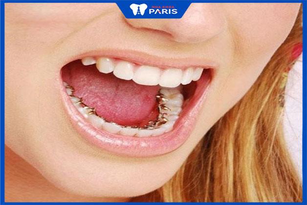 bảng giá niềng răng một hàm