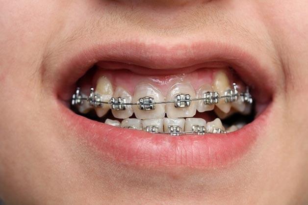 chăm sóc răng miệng sau khi niềng để bớt đau