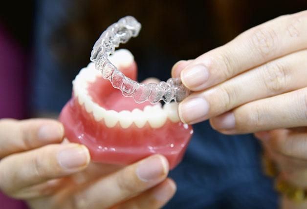 Cách thực hiện niềng răng không mắc cài