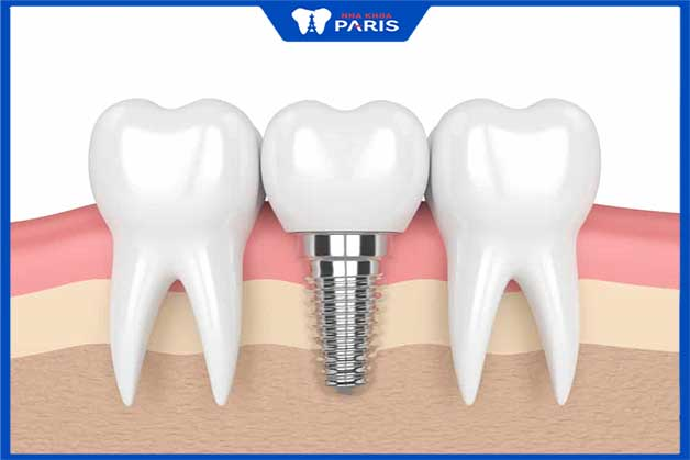 Trụ implant thiết kế nhỏ hạn chế xâm lấn