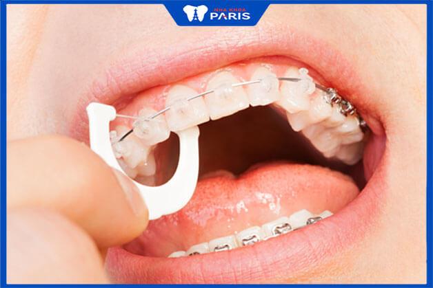 Niềng răng mắc cài trong suốt vẫn còn nhiều khó khăn khi vệ sinh