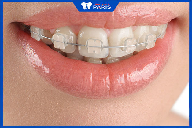 Niềng răng mắc cài trong suốt mang lại ưu điểm lớn về thẩm mỹ