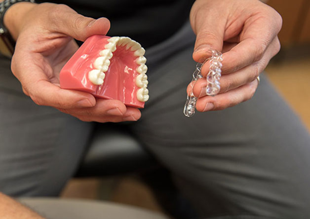 niềng răng trong suốt hoạt động ra sao