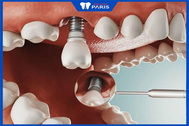 Thông thường sau khi đặt implant phải chờ 2-5 tháng thì implant mới có thể tương thích với xương