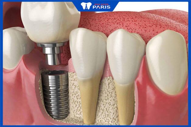 Cấy ghép implant cho răng số 6