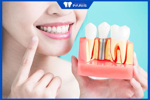 trồng răng implant giúp giữ nguyên hàm răng