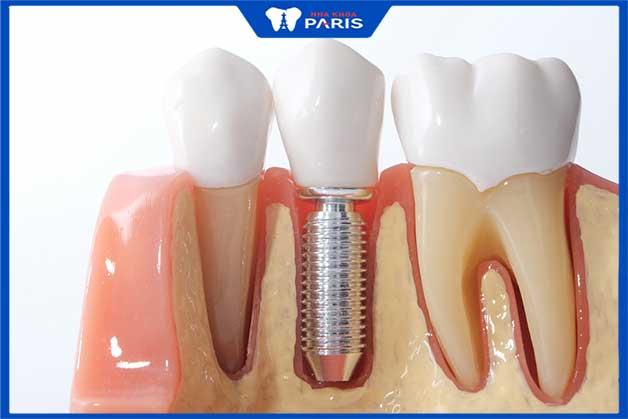 Cần đầu tư thời gian khi cấy răng implant