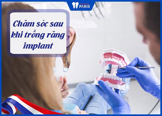 trồng răng cấy ghép implant chăm sóc như nào