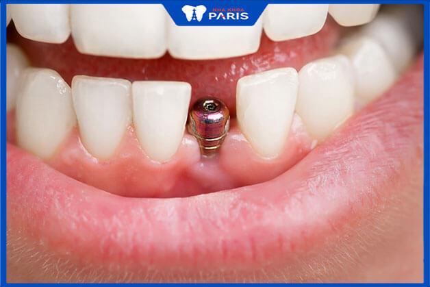 Nên chọn trồng 1 răng Implant tại cơ sở chất lượng
