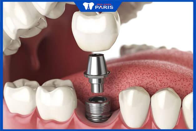Phương pháp khắc phục tiêu xương răng