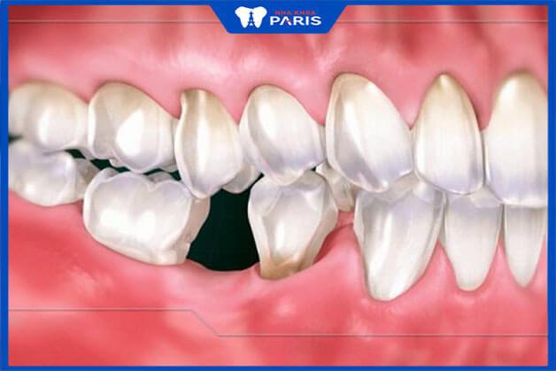 Răng hàm bị mất có cần trồng răng không