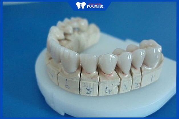 Đến địa chỉ uy tín có công nghệ tân tiến, chính xác đảo đảm hiệu quản cho trồng răng sứ