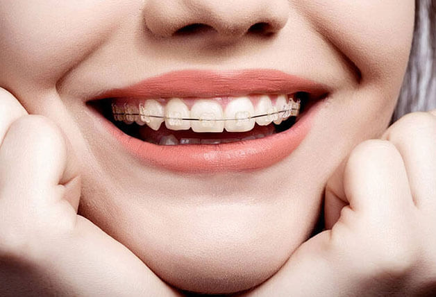 Đến nhà khoa uy tín kết quả niềng răng được như ý muốn