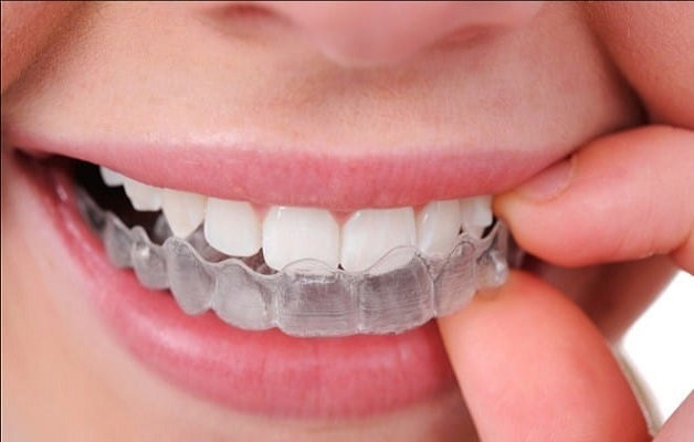 Sử dụng hàm duy trì cho răng chắc khoẻ