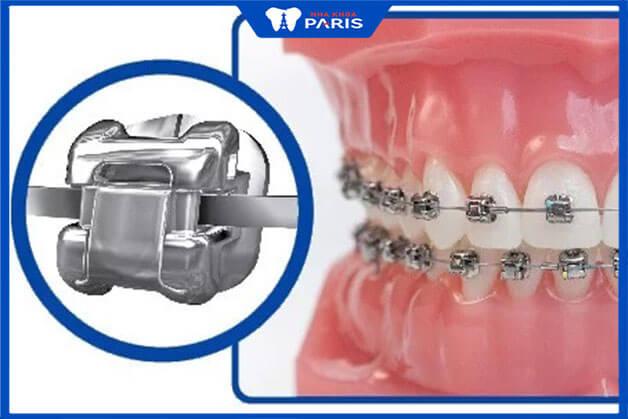 Chất lượng của niềng răng kim loại tốt nên có mức giá cao
