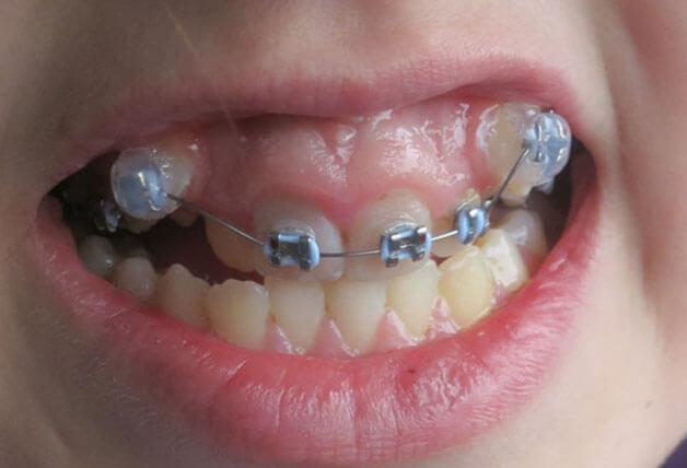 Đối tượng phù hợp thực hiện niềng răng một hàm