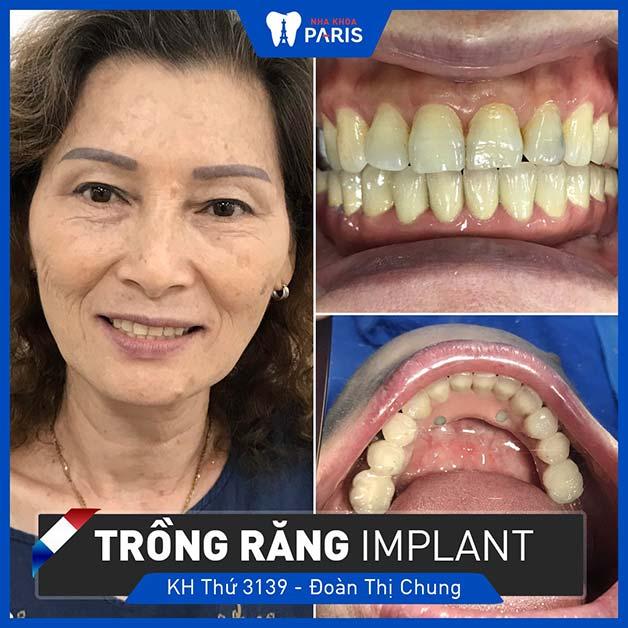ai nên thực hiện trồng răng bằng cấy ghép implant