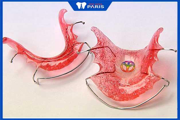 Sử dụng hàm duy trì giúp răng ổn định sau khi niềng