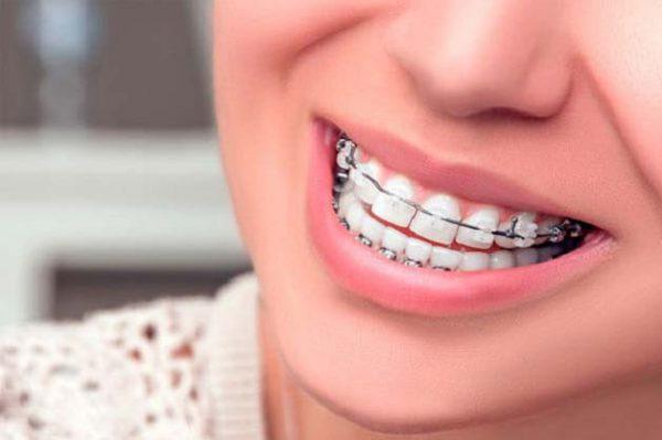 chi phí niềng răng mắc cài tự buộc