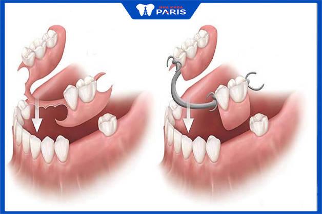 làm hàm tháo lắp để cải thiện tình trạng mất răng