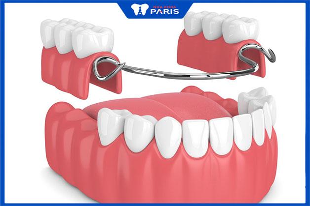 Giải pháp ngắn hạn cho người mất răng số 7